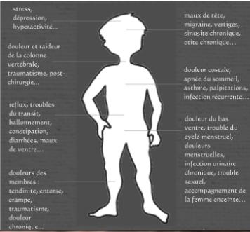 douleur musculaire suite sinusite